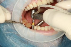 Implant dentaire Tunisie